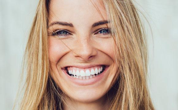 Kosmetik: Zeigt her eure Zähne