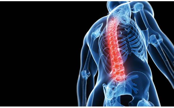 Rückenprobleme: Entlastung für den Rücken